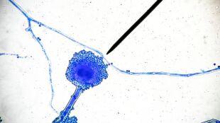 """Coraz więcej przypadków zachorowań. Śmiercionośny """"czarny grzyb"""" atakuje chorych na COVID-19"""